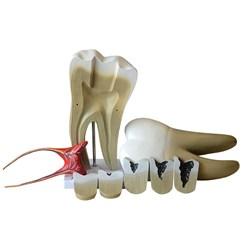 Dente Molar Ampliado com Evolução da Cárie 8 Partes