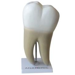 Dente Molar Ampliado Saudável e Cárie