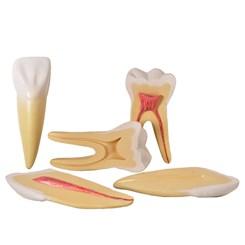 Dentes Ampliados Canino, Incisivo e Molar