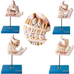 Desenvolvimento da Dentição 4 Partes