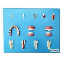 Patologia Dentária 12 Peças