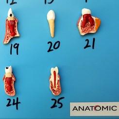 Patologia Dentária 25 Peças